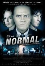 Normal (ı)